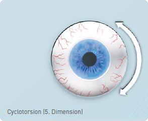 Cyclotorsion (5. Dimension)