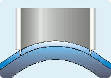 LASEK-Augenlaserbehandlung Schritt 1