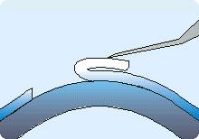 LASEK-Augenlaserbehandlung Schritt 3