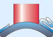 LASEK-Augenlaserbehandlung Schritt 4