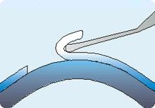 LASEK-Augenlaserbehandlung Schritt 5