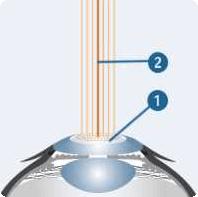 c-ten-methode-laserwirkung